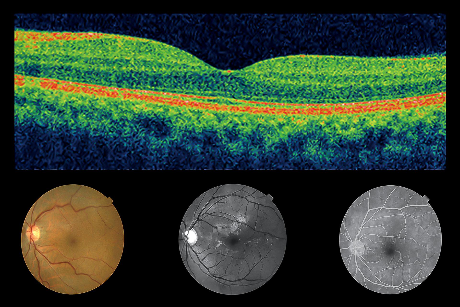 Diabetes Diagnose - Bildquelle: TOPCON Deutschland Medical GmbH (überarbeitet)