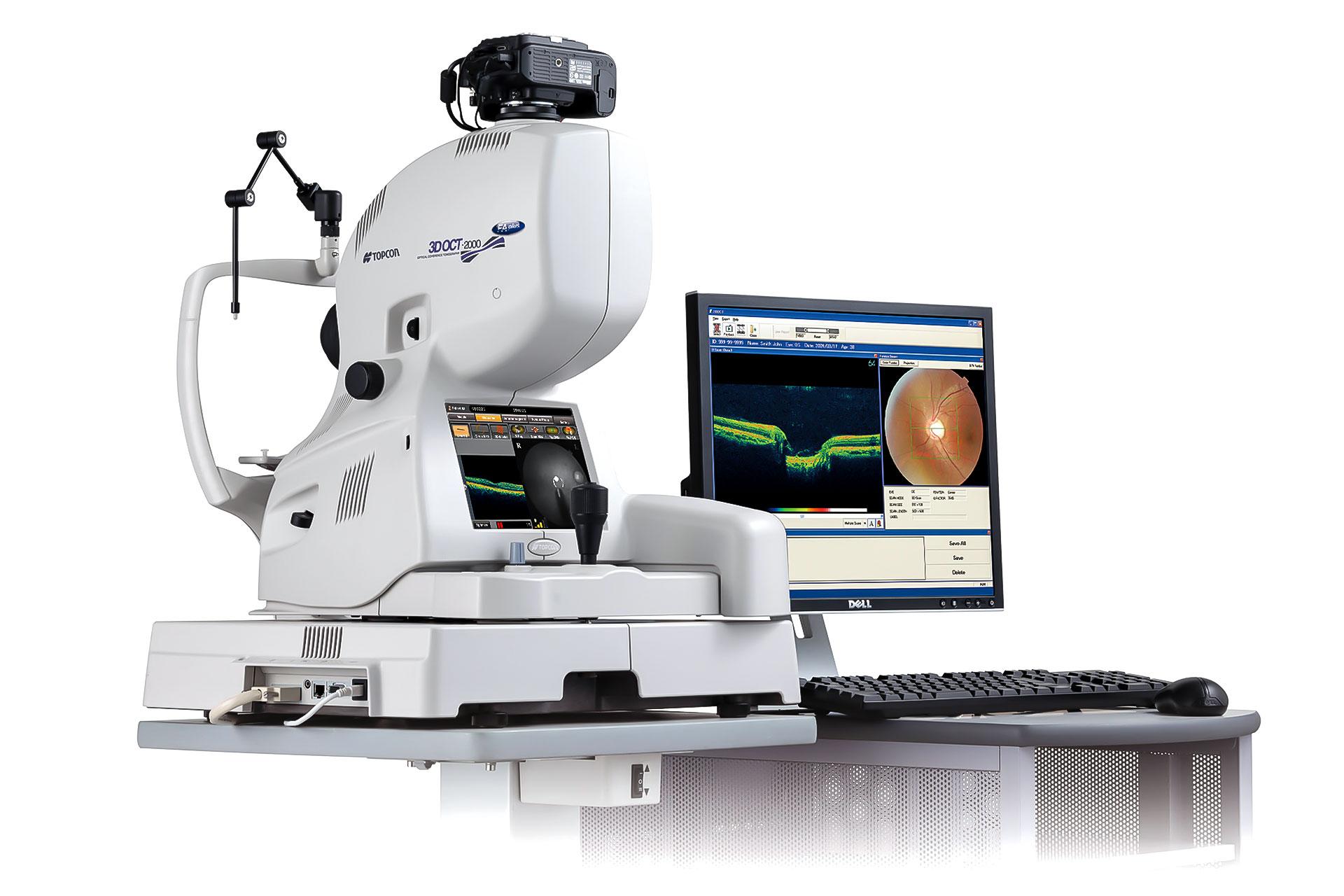 Glaukom - Bildquelle: TOPCON Deutschland Medical GmbH